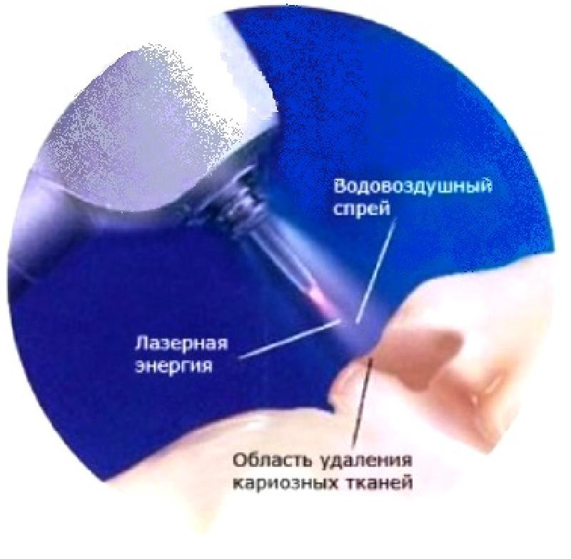 Крохмаль Дмитрий лечение зубов лазером отзывы пить алкоголь после