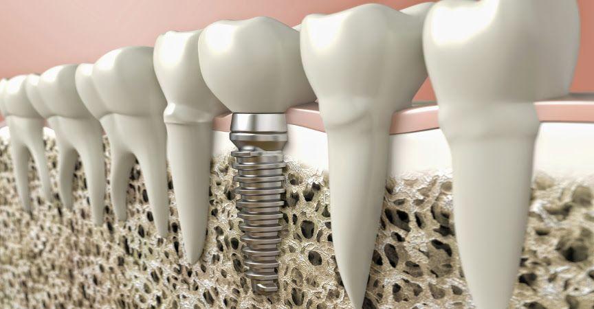 Зубная имплантация и стоматологические импланты