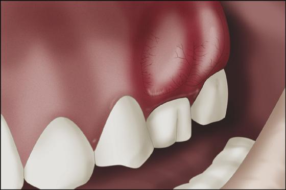 Чем опасен флюс зуба?