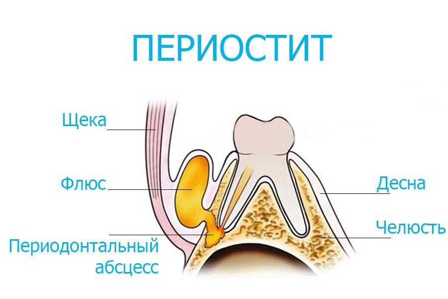 Почему возникает флюс после удаления зуба мудрости?