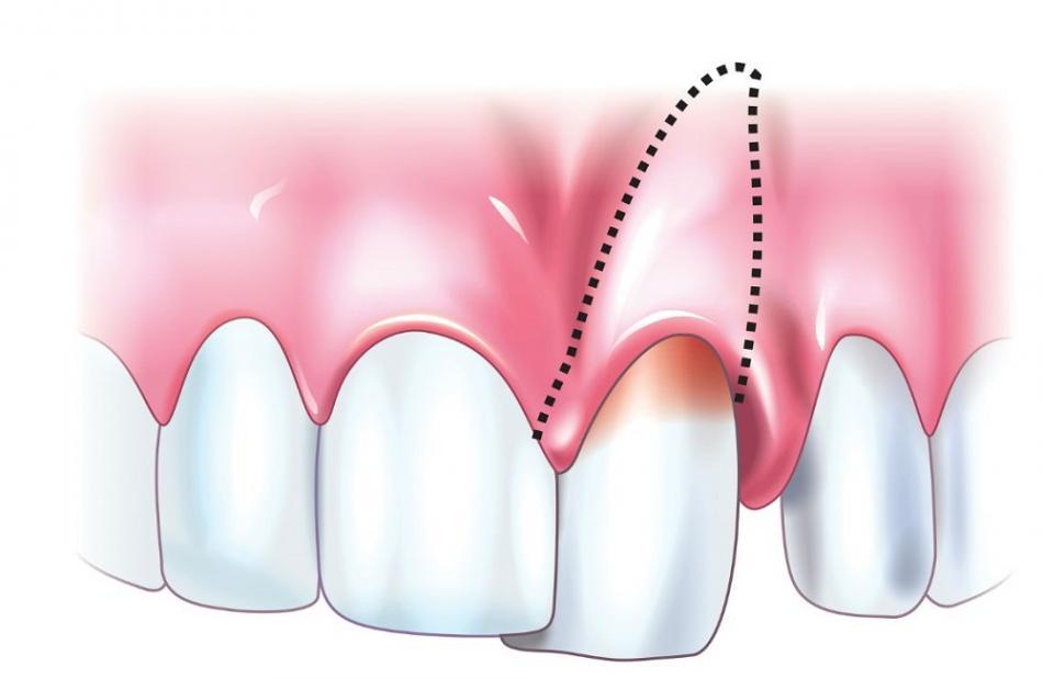 Что делать, если шатаются зубы?