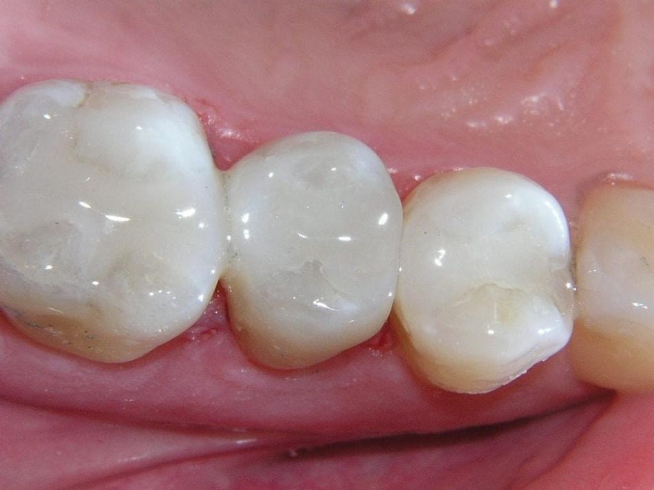 Сколько можно держать мышьяк в зубе?