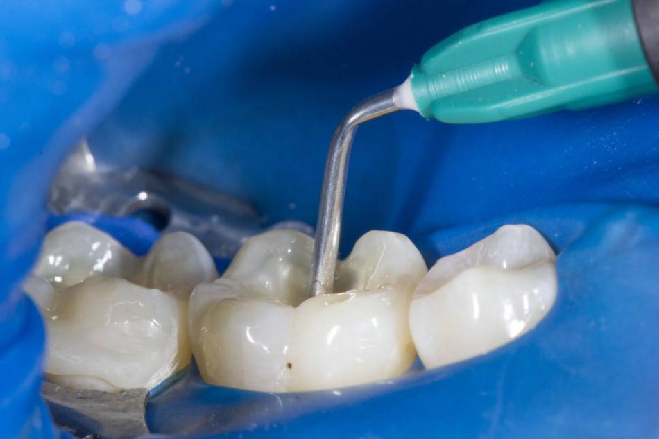 Поставили мышьяк и болит зуб - что делать?