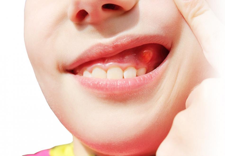 Свищ зуба - симптомы и причины заболевания.