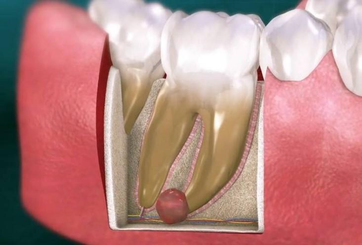 Терапевтический метод лечения кисты зуба.