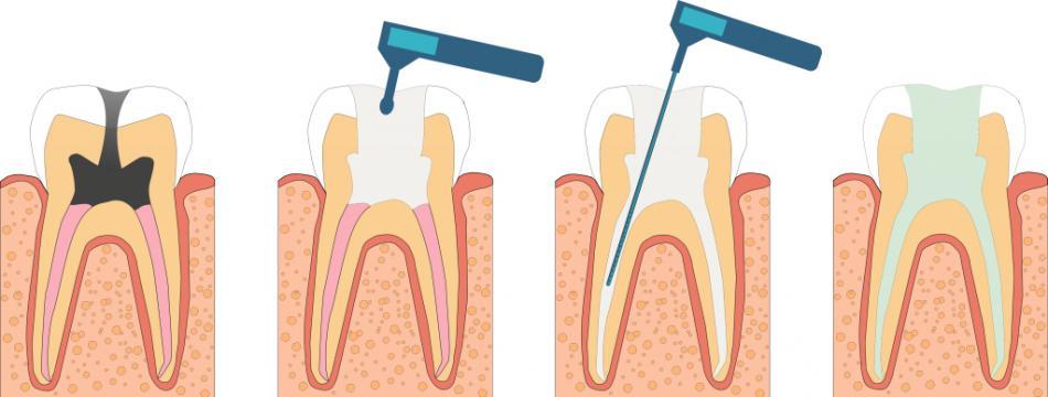 Пульпит молочных и постоянных зубов.