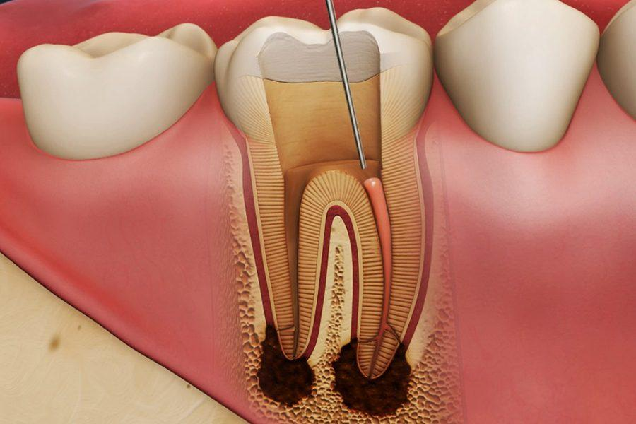 Воспаление зуба: симптомы и причины возникновения.