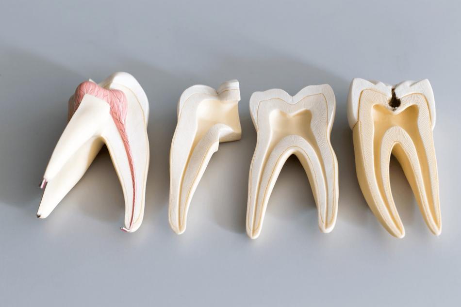 Цена на экстракцию ретинированного зуба.