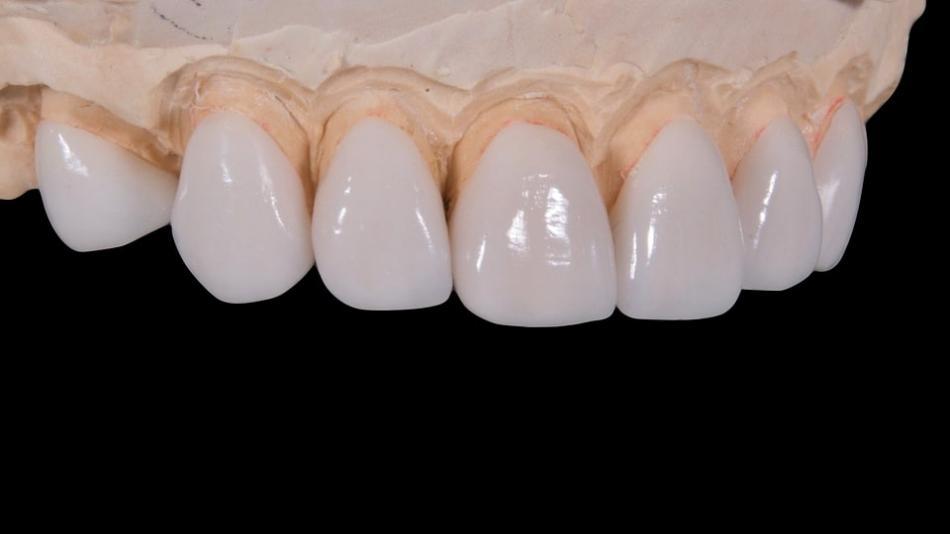 Как делают ламинирование зубов?