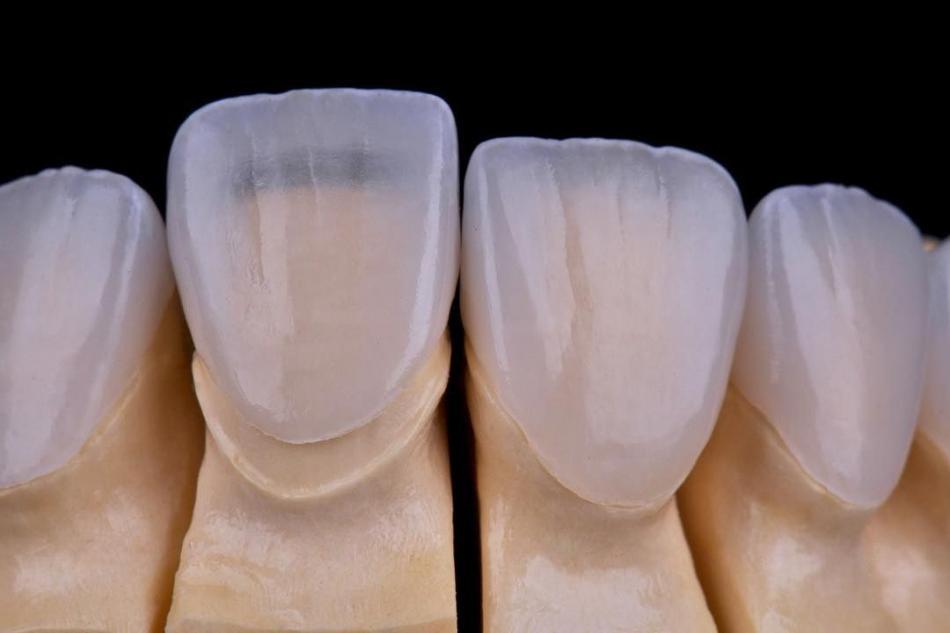 Установка ламинатов на зубы в стоматологии.